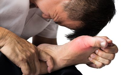 My Big Toe is on Fire: Treating Gout Online