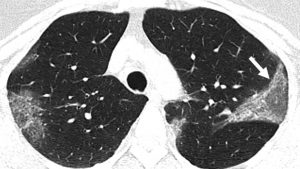 CT scan coronavirus lung